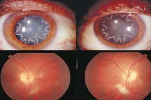 Un Choc électrique de 14 000 volts donne à un homme des étoiles permanentes dans ses yeux