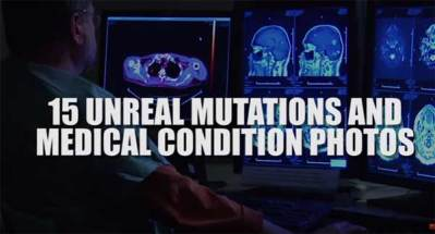 15 Mutations et Conditions Médicales Surnaturelles