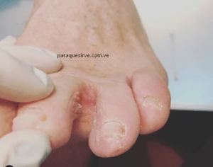 Como curar el pie de atleta