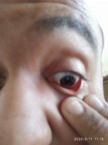 Porque Se Enrojecen los Ojos