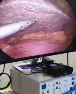 Como curar el hígado graso