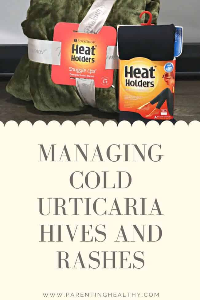 Managing Cold Urticaria hives and rashes