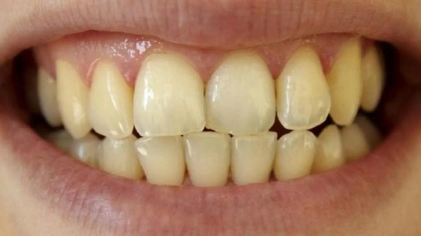 C:\Users\PC\Downloads\Esthetic-dentistry.004-1.jpeg