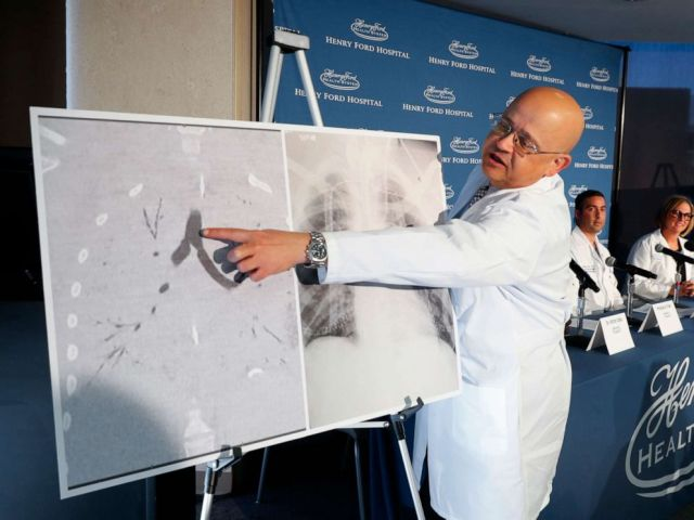 PHOTO: Dr. Hassan Nemeh, Surgical Director of Thoracic Organ Transplant, shows areas of a patients lungs during a news conference at Henry Ford Hospital in Detroit, Nov. 12, 2019.