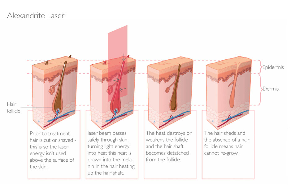 Laser Hair Removal  Parfaire Clinic
