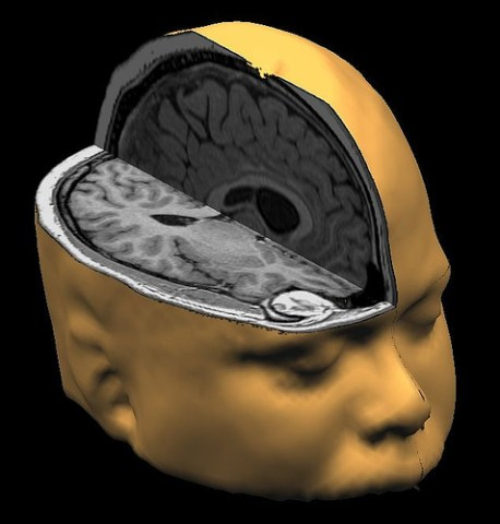 brain images photo