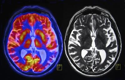 Dopamina Parkinson