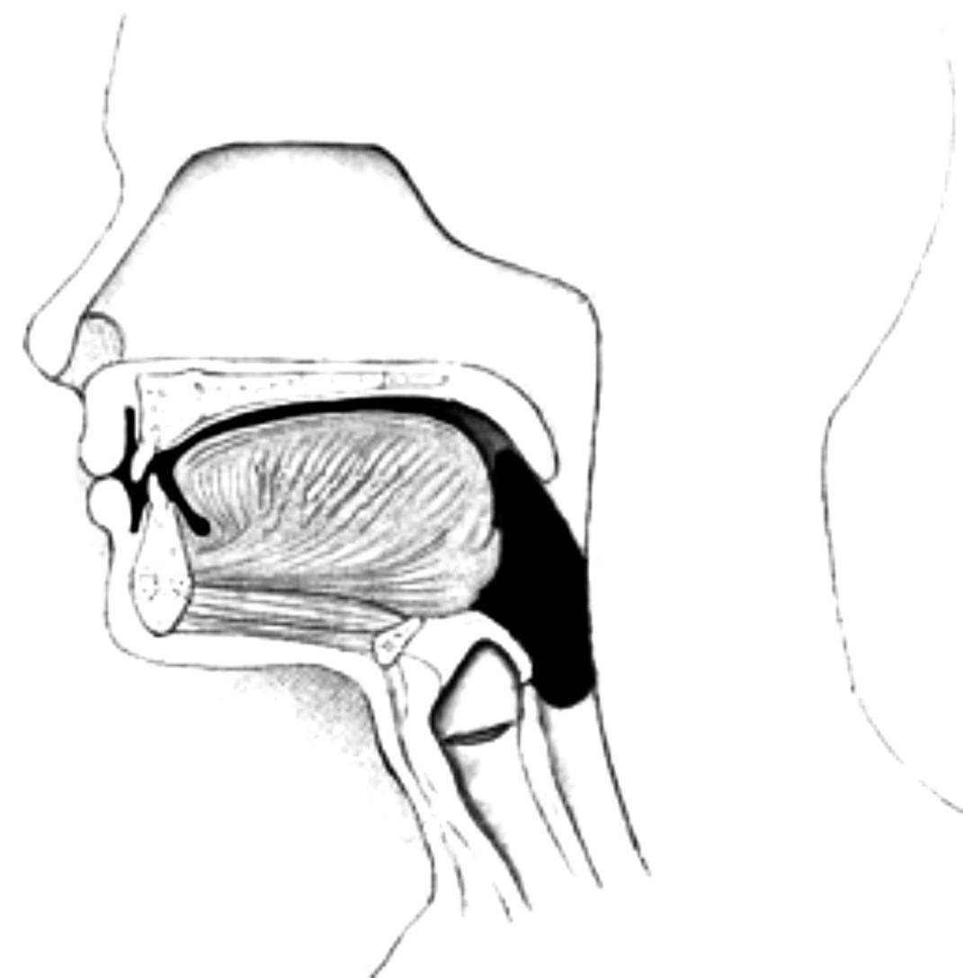 Dysphagia in Parkinson's