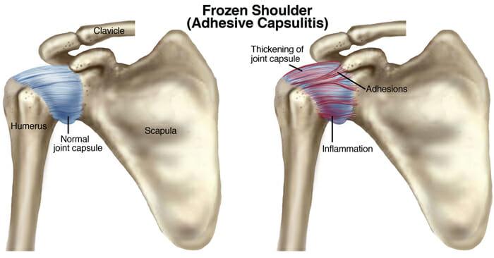 frozen shoulder treatment park sports