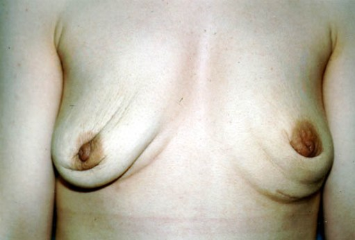 Leaky breast implants