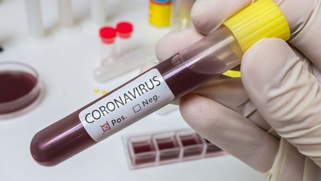 With four new coronavirus cases, Nigeria's toll rises to 139