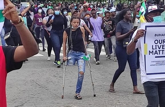 #EndSARS protesters raise over N3 million for lady with no limb