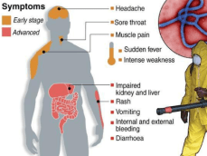 heres-how-ebola-affects-the-body