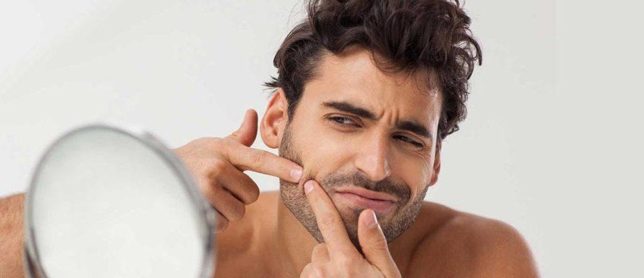 remèdes naturels pour se débarrasser de l'acné