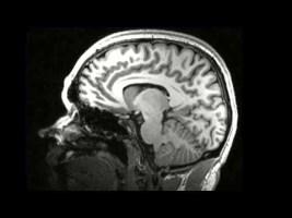 brain-healing-320x200