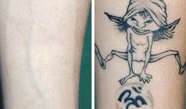 Rimozione tatuaggio il chirurgo estetico  PassioneTattoo