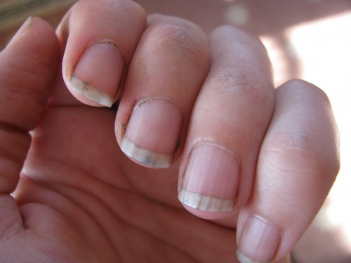 Image result for dirty fingernails