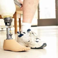 Como conseguir próteses e aparelhos ortopédicos pelo SUS