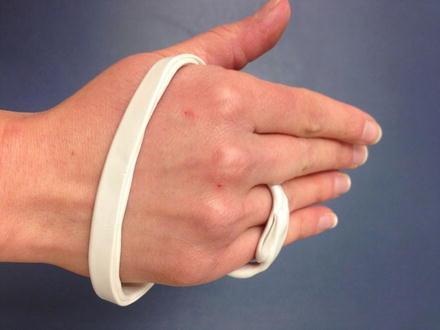 Splints - Pass The OT