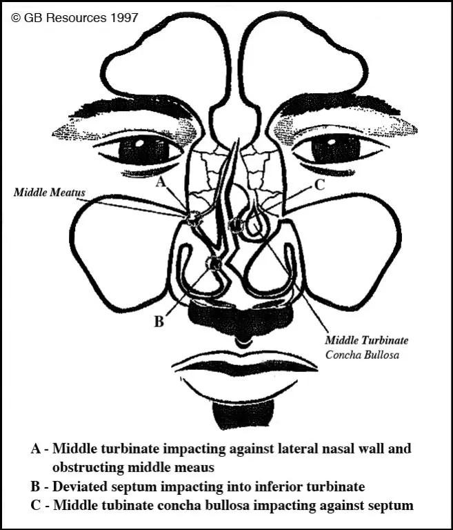 When Is a Sinus Headache Really a Nasal Headache