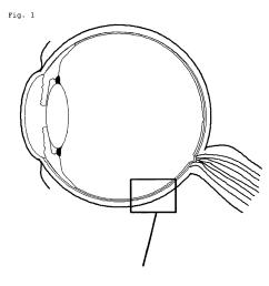 human eye diagram without labels photo 28 [ 1949 x 1925 Pixel ]