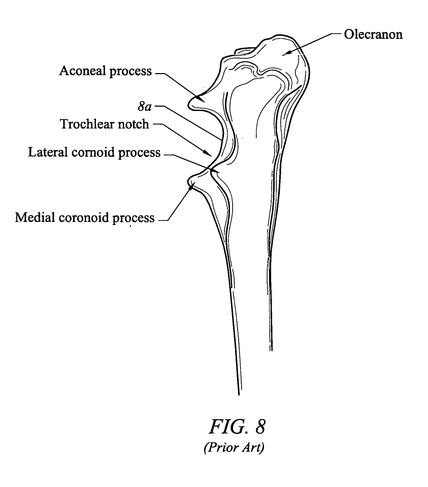 Patent US20040220675 - Total elbow replacement for dogs ...