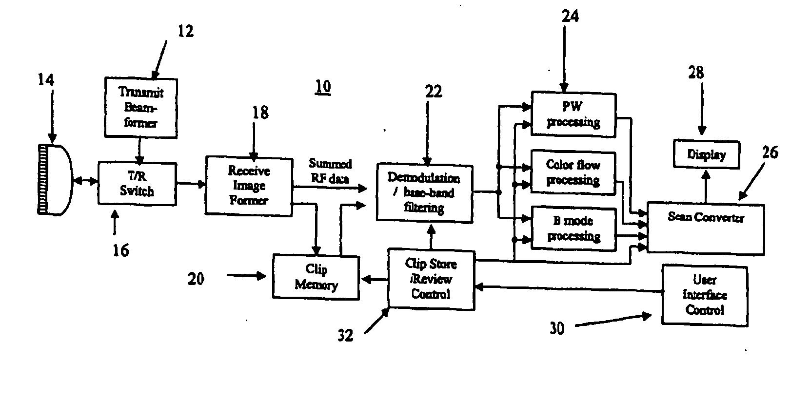 Block Diagram Ultrasound Machine