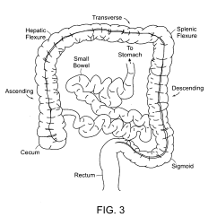 Ileocecal Valve Diagram Detailed Skeletal System Of Colon And Imageresizertool Com