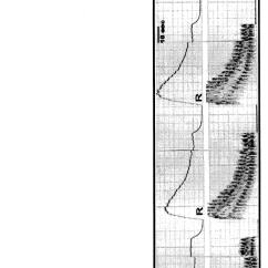 Synapse Diagram Unlabeled 8 Pin Relay Wiring Hip Pe Elsavadorla