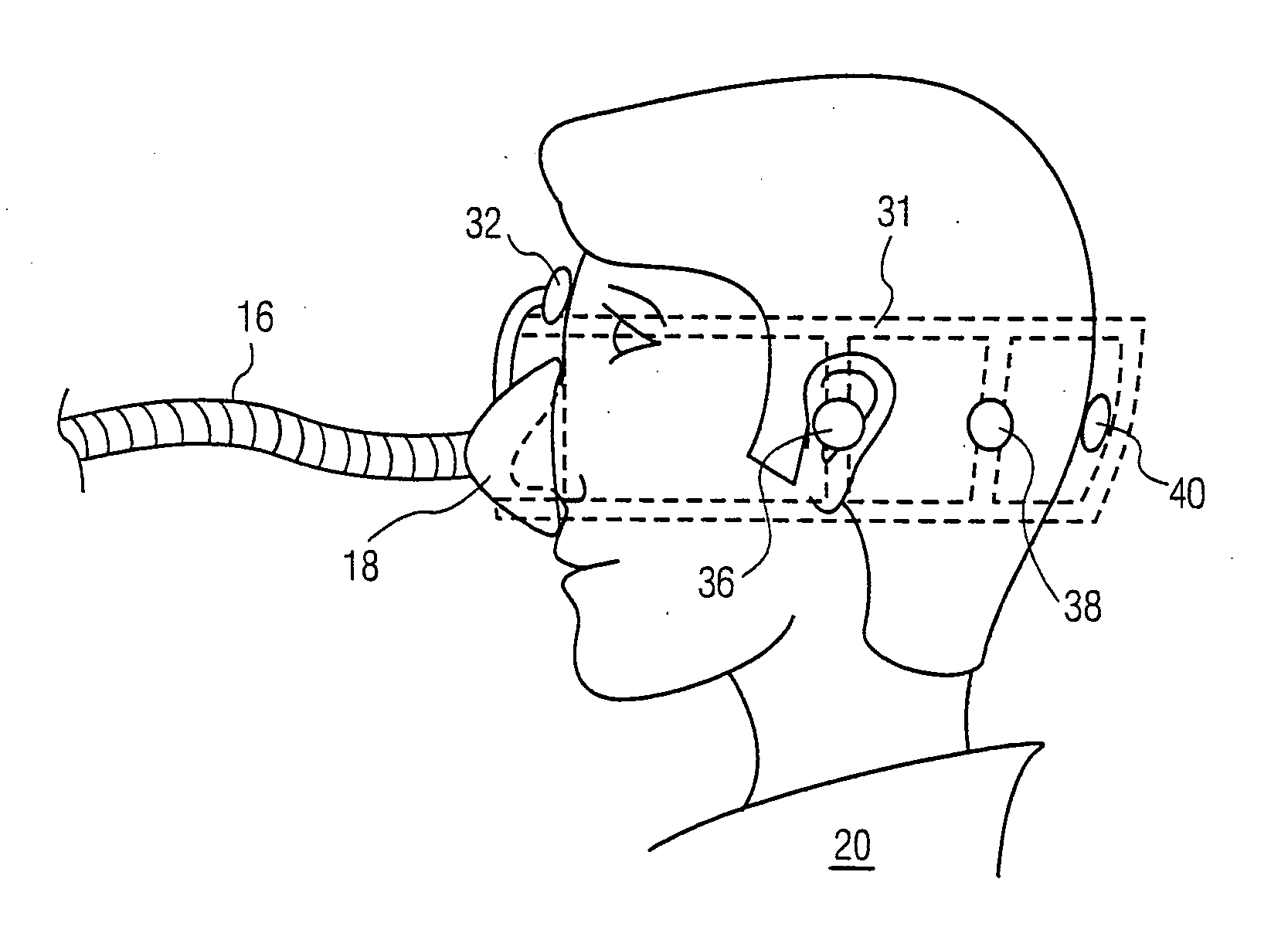 Cpap Chin Strap With Attached Mask | Wiring Diagram Database