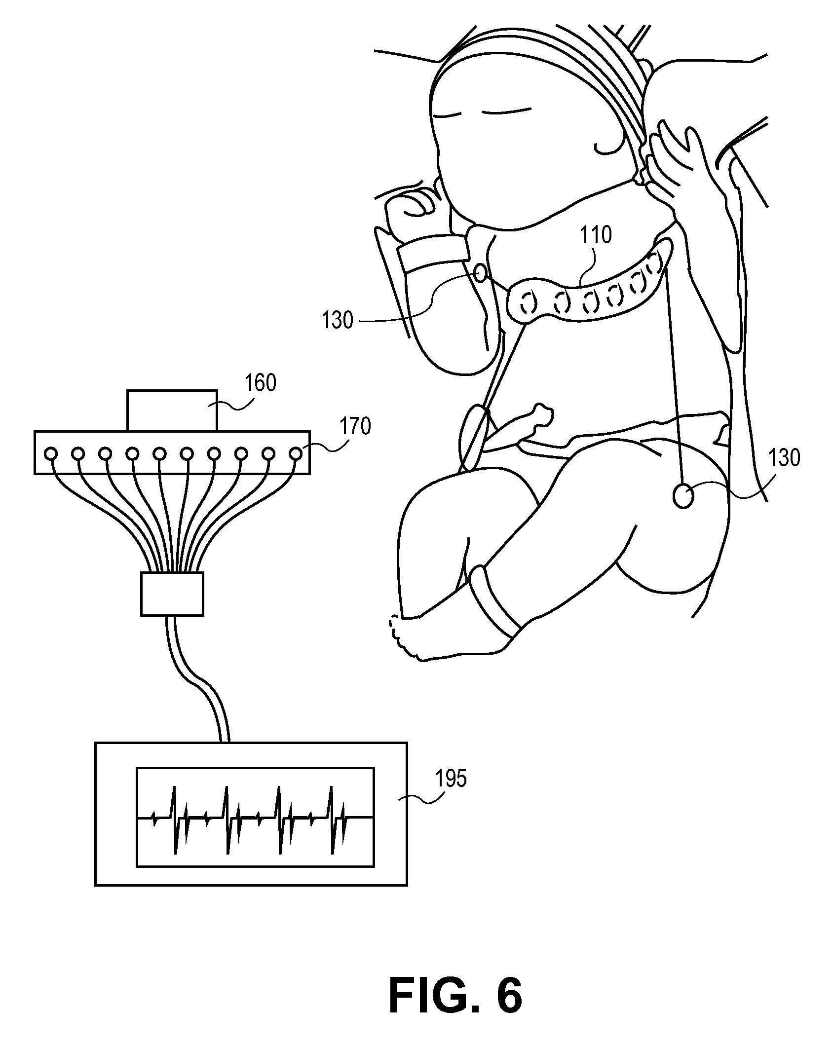 4 lead ekg placement diagram bodine b90 emergency ballast wiring patent us20110270100 ecg leads system for newborn