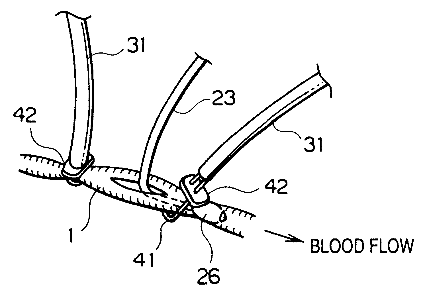 diagram of a heart bypass graft dimarzio hs3 wiring patent us6319193 auxiliary device for pulsatile coronary