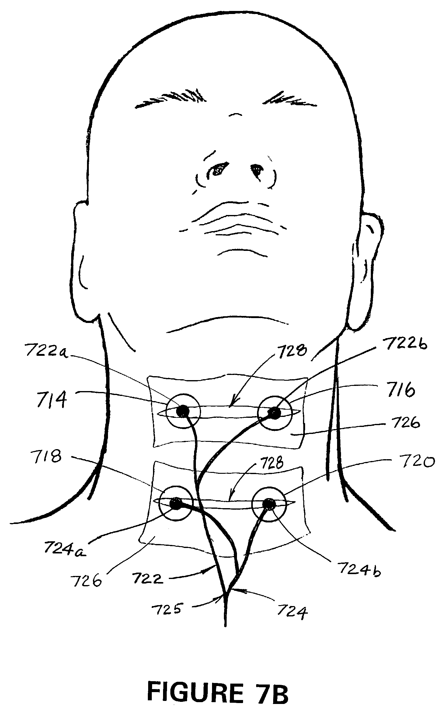 For Electrical Stimulation Pad Placement