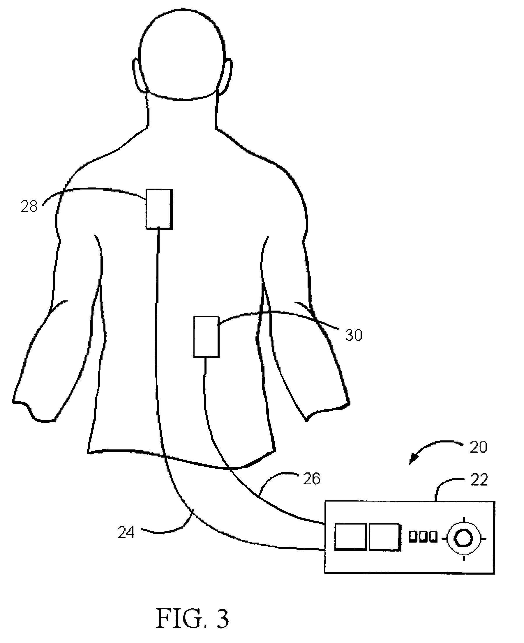 transcutaneous electrical nerve stimulator