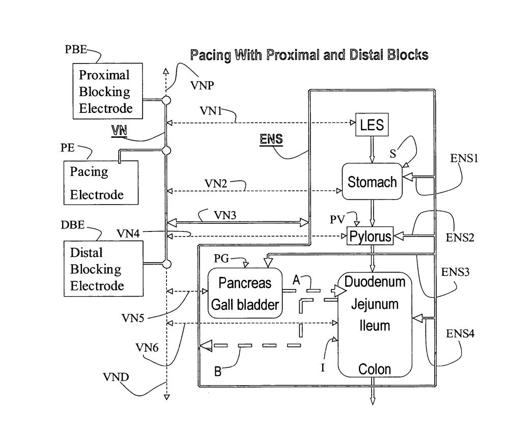 medium resolution of 1986 phantom 164 wiring diagram