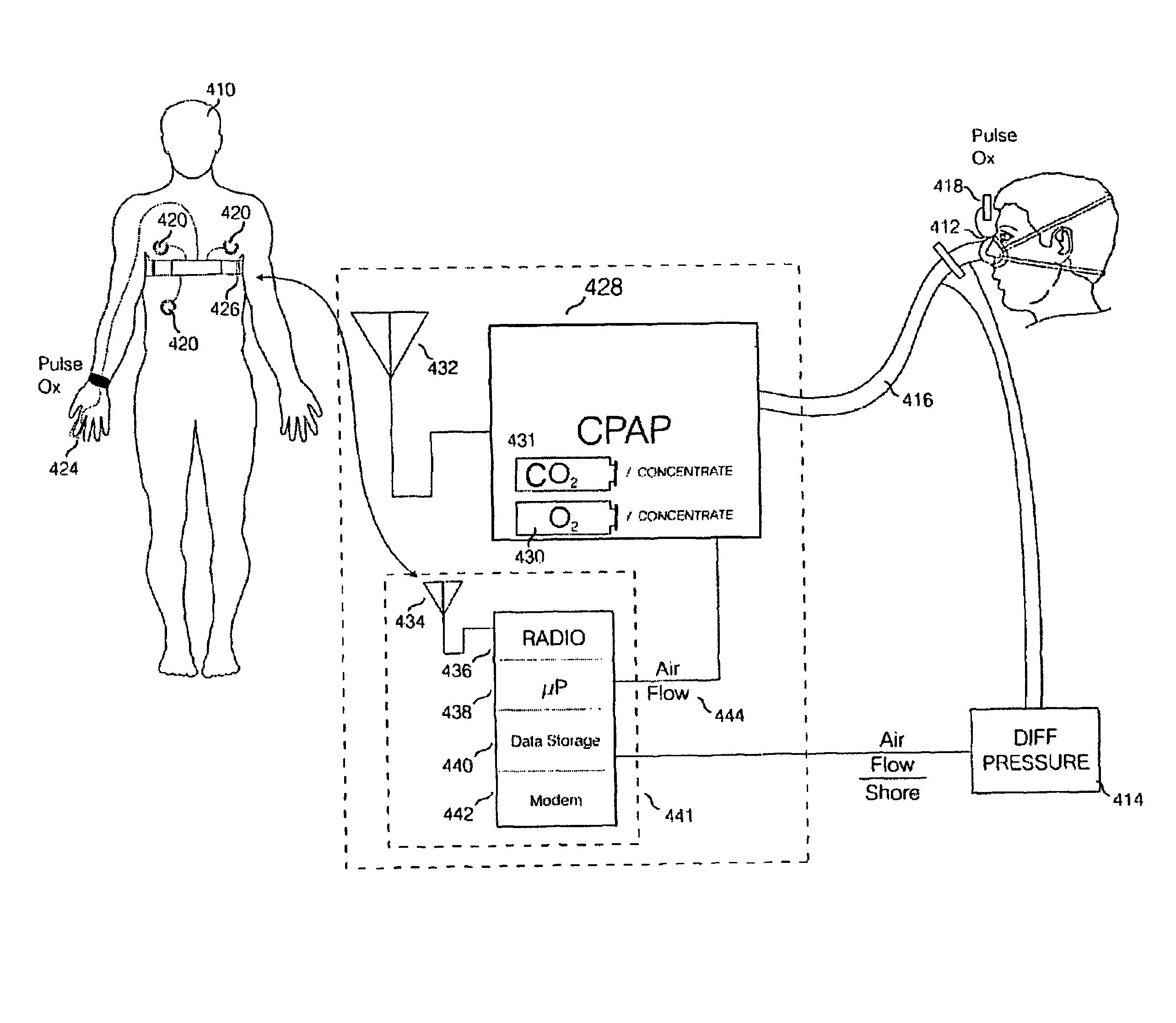 Electric Kes Diagram, Electric, Free Engine Image For User