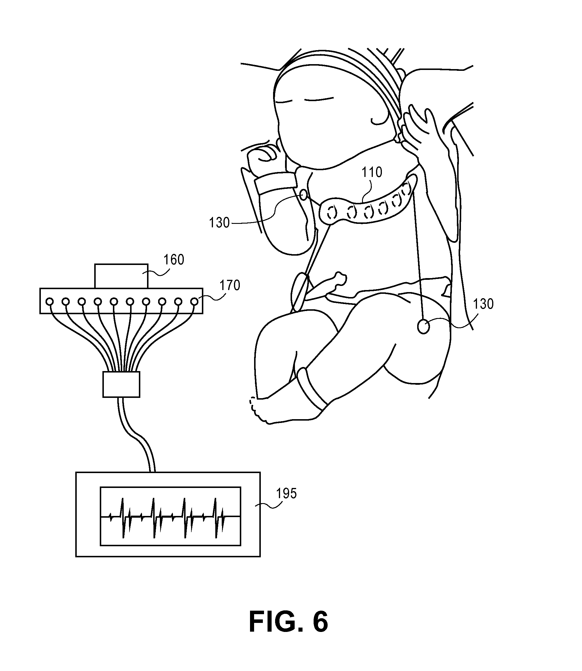 pediatric ekg lead placement diagram wiring for household light switch patent us8369924 - ecg leads system newborn screening google patents