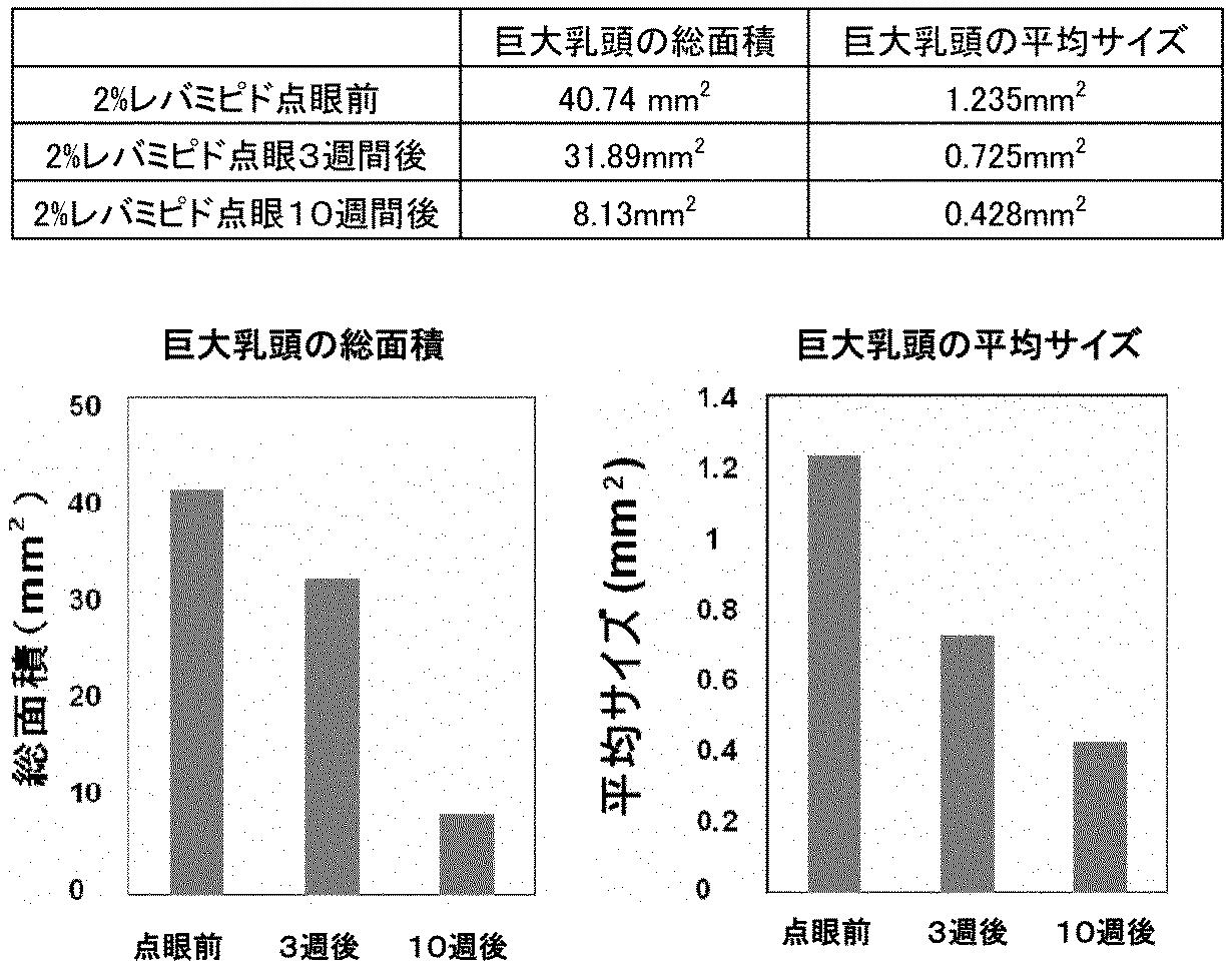 結膜炎   [組圖+影片] 的最新詳盡資料** (必看!!) - www.go2tutor.com