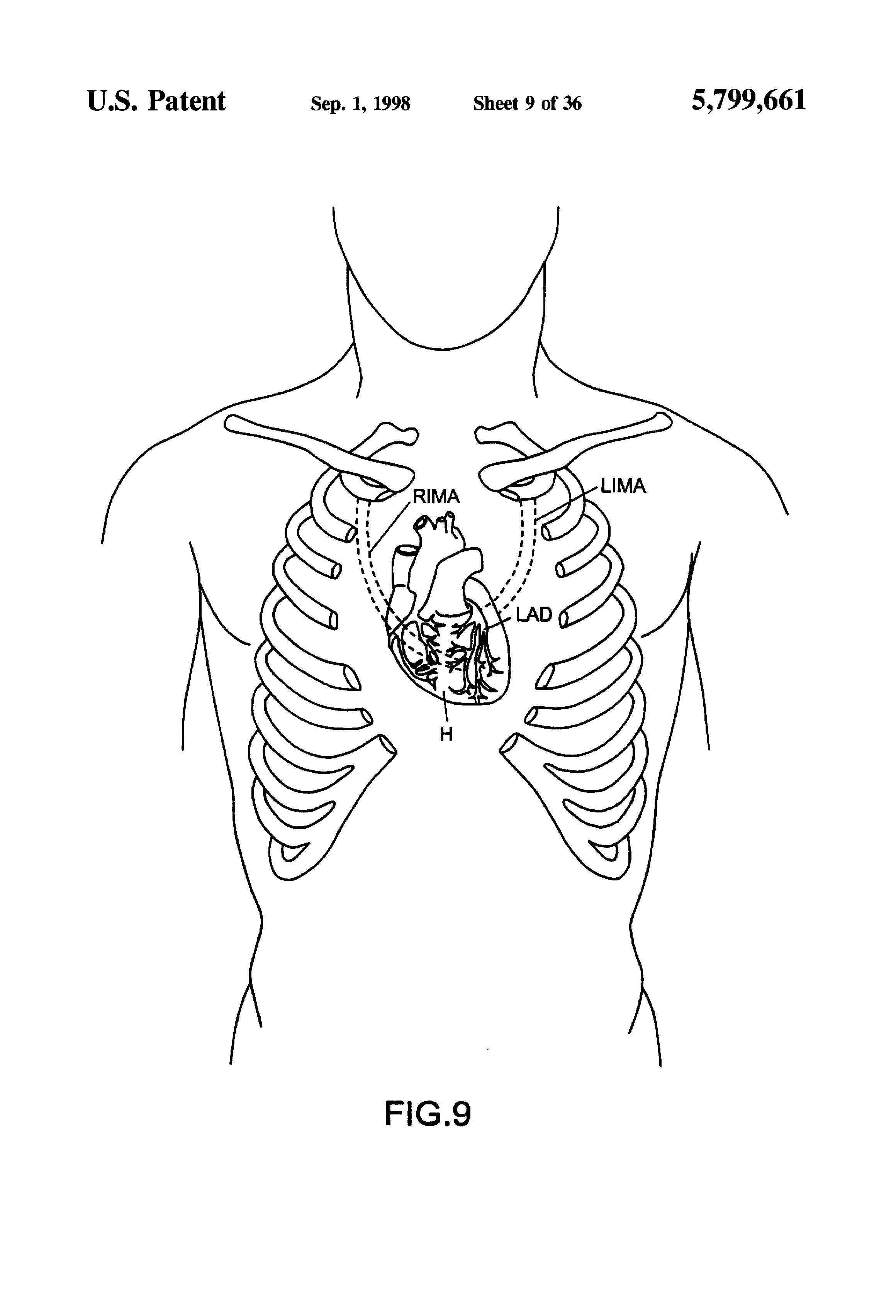 diagram of a heart bypass graft wiring for starter relay patent us5799661 devices and methods port access