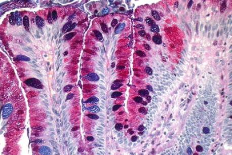 PAS + Alcian blue stain showing purple colored goblet cells and magenta colored gastric foveolar cells