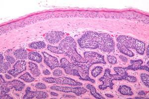 Adenexal tumors mcqs
