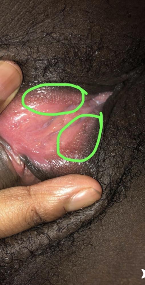 I'm BUGGING OUT Herpes ? Genetal warts | Genital Herpes ...