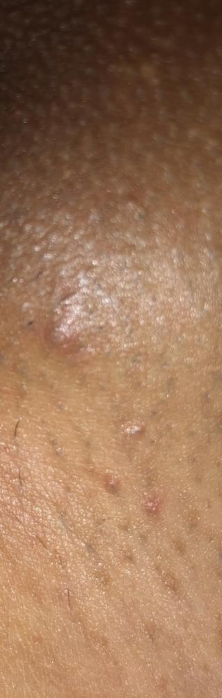 Herpes genital forum