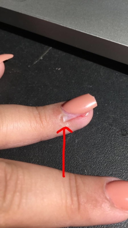 Why Do My Acrylic Nails Keep Lifting : acrylic, nails, lifting, Acrylic, Resulting, Lifting, Believe, Pushing, Disorders, Forums, Patient