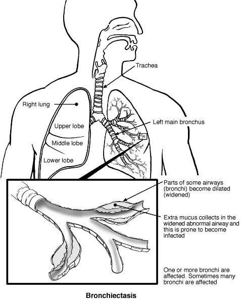 Medical Symptom Diagram