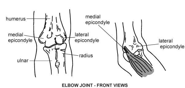 tennis elbow symptoms diagram