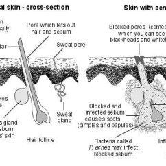 Acne Face Diagram 91 K5 Blazer | Health Patient