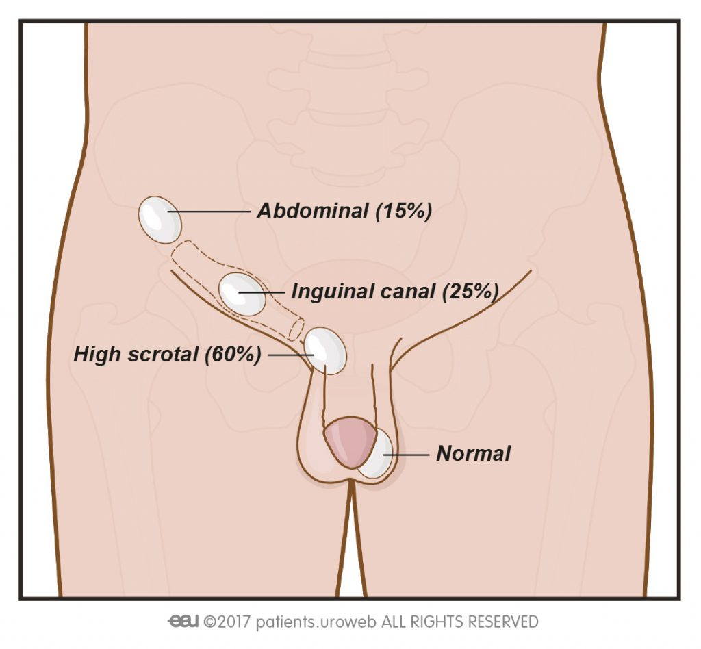 hight resolution of 1 in cryptorchidism the testicles fail to descend into the scrotum