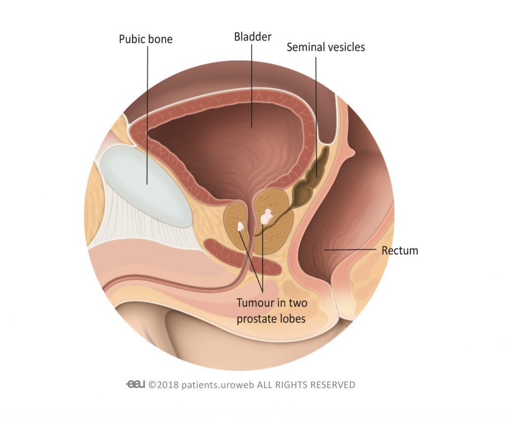 hight resolution of 2 a t2 prostate tumour is limited to the prostate