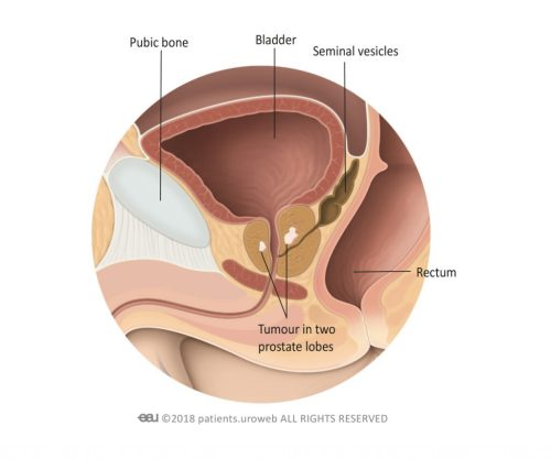small resolution of 2 a t2 prostate tumour is limited to the prostate